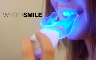 Whiter Smile Review | Effective and Tasty Teeth Whitening Kits For All
